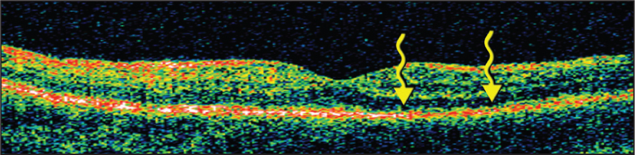 Optical Coherence Tomography Horizontal Line Scan of the Left Eye Affected by Multiple Evanescent White Dot Syndrome. Wavy Arrows Point to Irregularities at the Level of the Photoreceptor–Retinal Pigment Epithelial Interface Temporal to the Fovea.