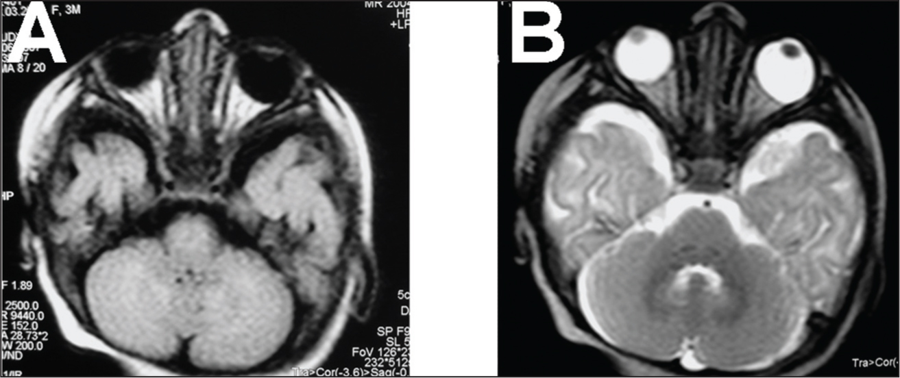 (A) T1-Weighted and (B) T2-Weighted Magnetic Resonance Imaging of the Cranium Showing the Intraorbital Portions of Both Optic Nerves and the Abnormal Optic Chiasm.