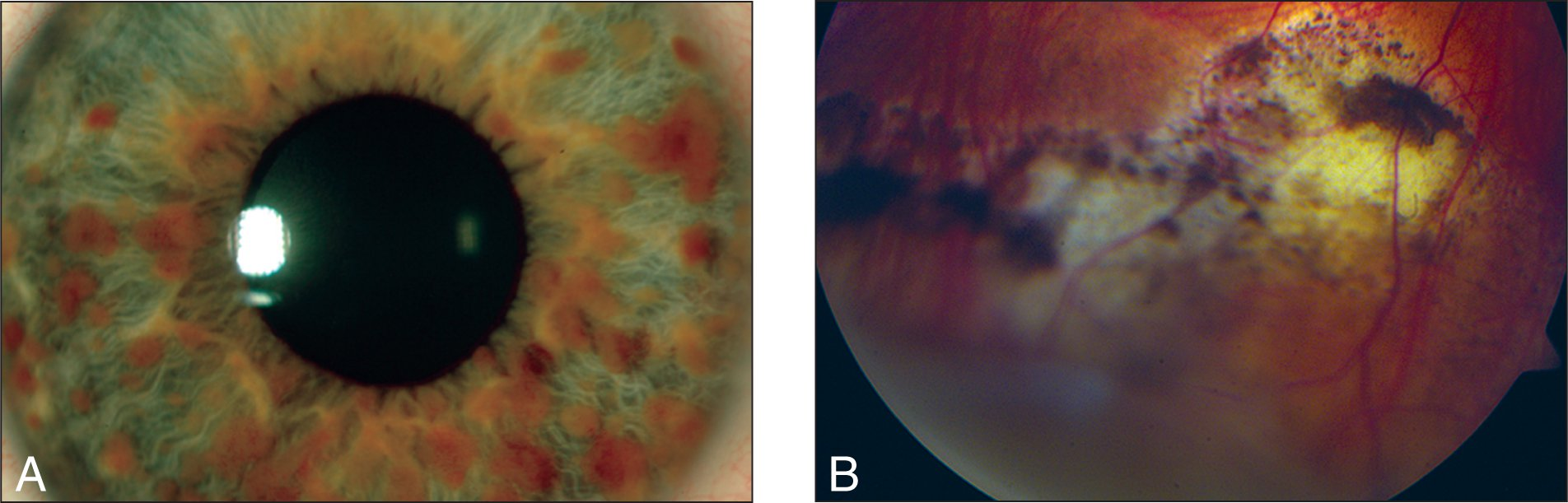 (A) After Treatment with Cryotherapy and Two Intravitreal Injections of Bevacizumab, Neovascularization of the Iris Resolved Almost Completely. (B) The Vasoproliferative Tumor Appeared Less Vascular, with Chorioretinal Atrophy and Hyperpigmentation of the Posterior Margin. Note Resolution of Lipid Exudates.