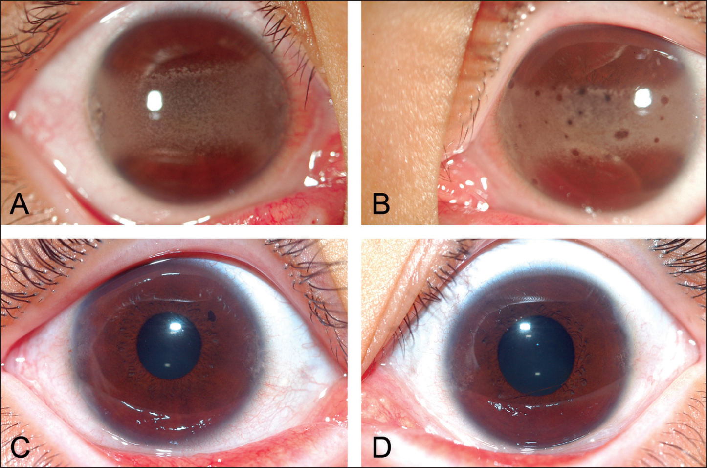 Bilateral Band Keratopathy in the (A) Right Eye and (b) Left Eye of a 9-Year-Old Girl with HDR Syndrome Before Surgery. Photographs Taken 2 Years After Surgery Show that Band Keratopathy Was Successfully Removed in the (C) Right Eye and (D) Left Eye.