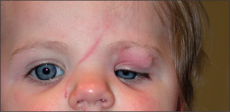 Appearance on Presentation, Showing Erythema and Ptosis.