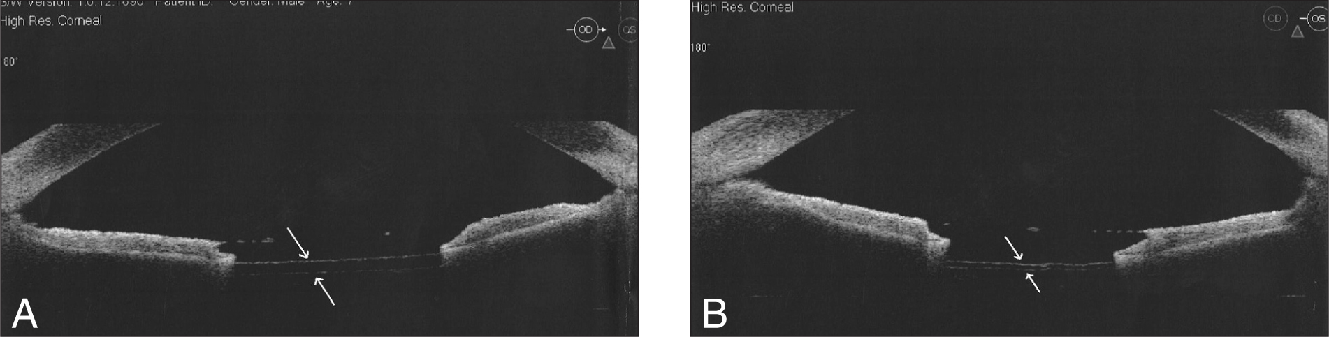 Anterior Segment Optical Coherence Tomography Showing Two Intact Membranes (arrows) in Place of the Lens in an Otherwise Normal Anterior Chamber. (A) Right Eye. (B) Left Eye.