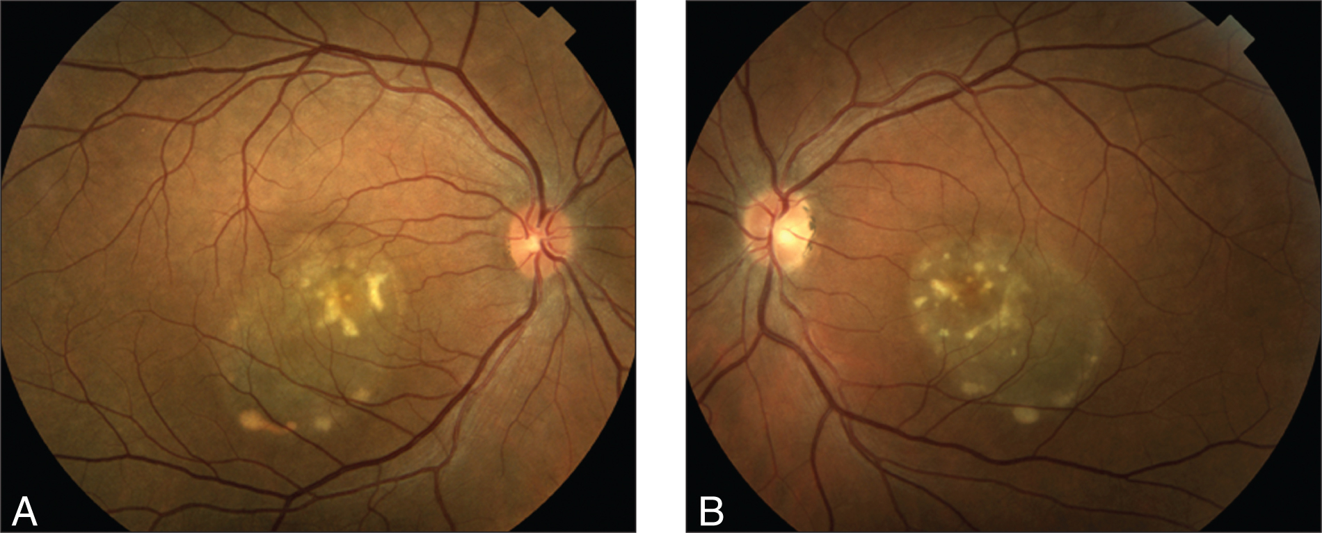 Right (A) and Left (B) Fundus Photographs of the Bilateral Vitelliruptive Lesions in the Patient's Father.
