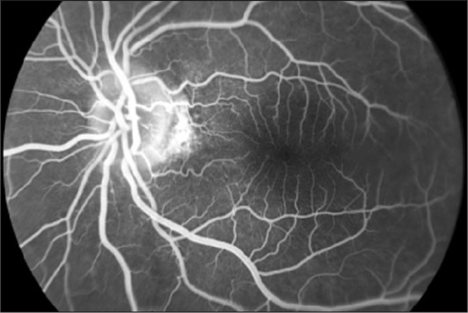 Fluorescein Angiography of the Left Eye Showing Elevation of the Optic Nerve Head. There Is No Fluorescein Leakage.