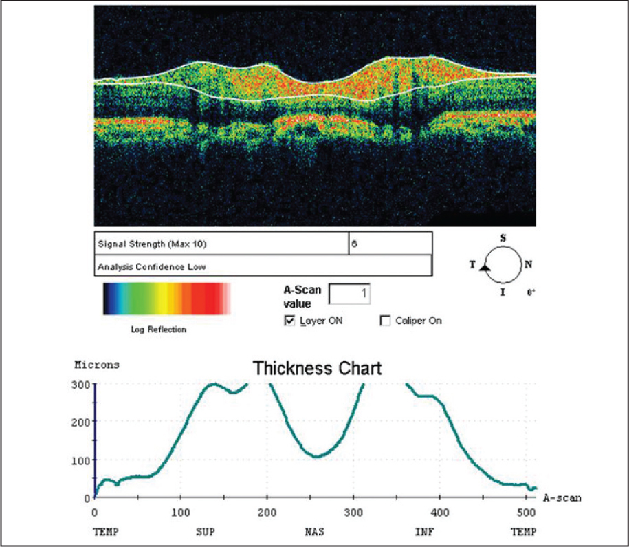 Optical Coherence Tomography of the Right Eye (Retinal Nerve Fiber Layer Thickness) Showing Increased Retinal Nerve Fiber Layer Thickness in the Superior and Inferior Quadrants and Severe Thinning Temporally.