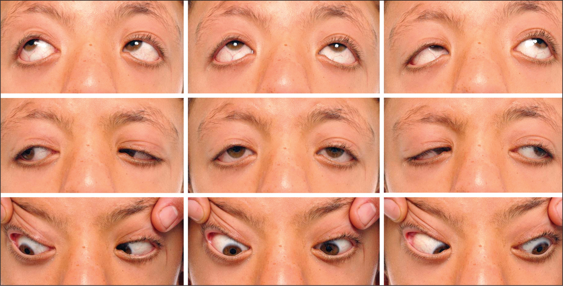 Bilateral Duane-Like Synkinesis in a Patient with Noonan Syndrome Showing Globe Retraction and Narrowing of the Palpebral Fissure in Adduction with Mild Restriction of Abduction in Both Eyes.