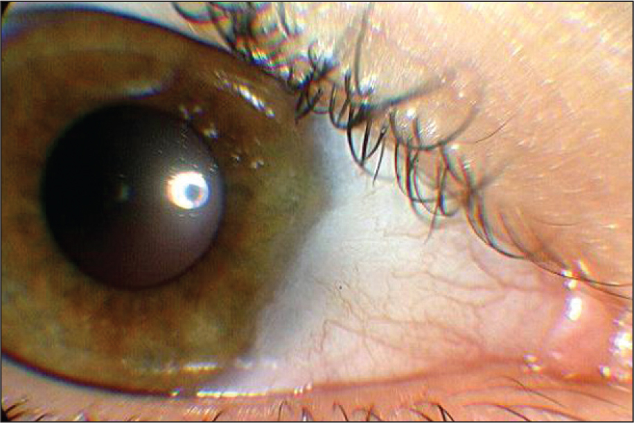 Nasal Pterygium Encroaching on the Cornea in the Right Eye. The Patient Complained of Significant Ocular Discomfort.