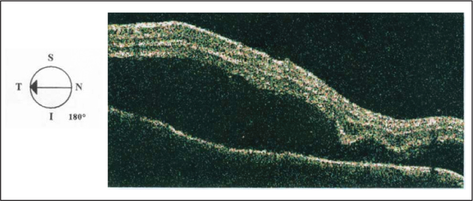 Optical Coherence Tomography Showing Massive Subretinal Fluid in the Right Eye.