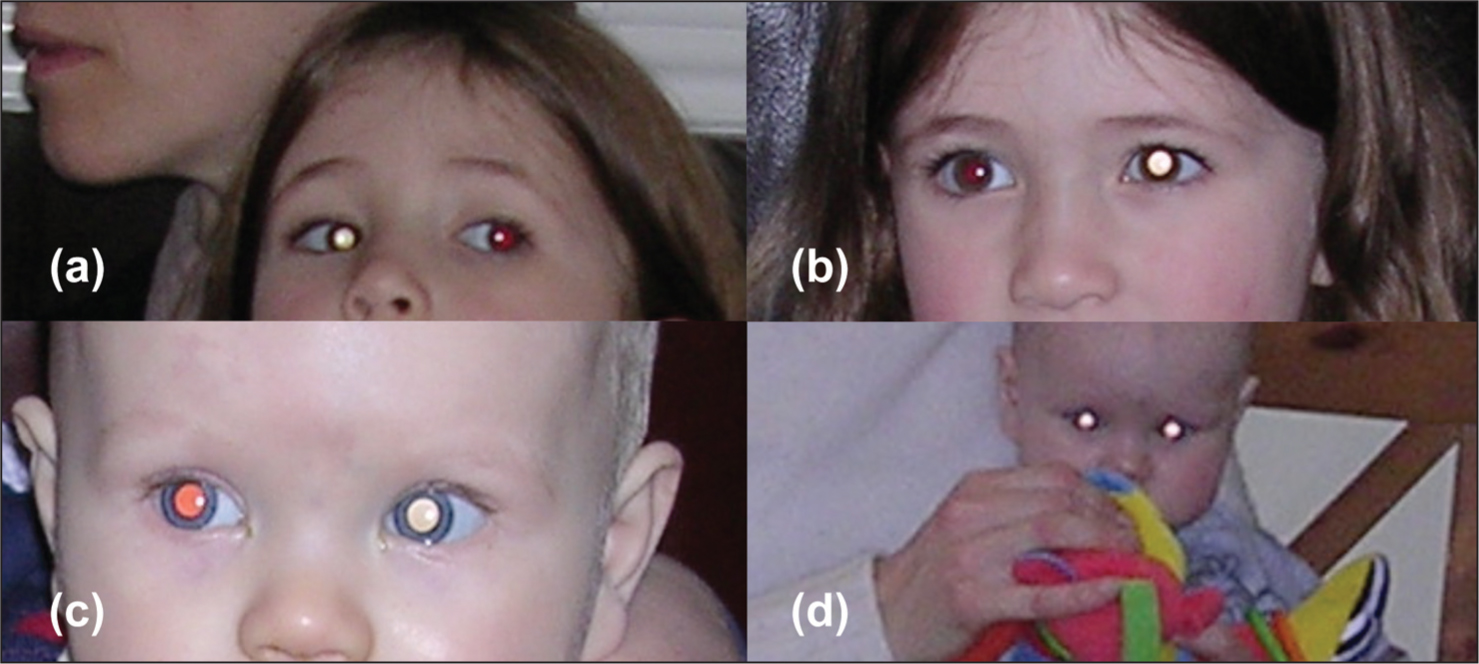 Case 3 Shows (A) Bilateral and (B) Left Leukocoria. Case 4 Shows (C) Left and (D) Bilateral Leukocoria (note the near Fixation). In Both Cases, Leukocoria Is Evident in the Adducting Eye(s).
