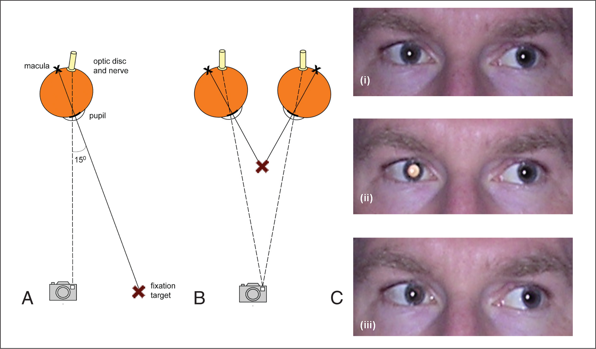 (A) The Right Eye of an Adult Demonstrating Illumination of the Optic Disc when There Is an Angle of 15° Between Fixation and Flash Illumination. (B) Convergence for near Fixation Allows Illumination of Both Optic Discs by the Camera Flash. With an Interpalpebral Distance of 54 mm, This Could Be Seen with a Fixation Target at 9.8 cm and the Camera at 3.83 cm. (C) Using a Camera Placed 120 cm from the Subject's Face and a Fixation Target Placed at Variable Distances to the Right of the Camera Flash, (i) No Leukocoria Is Produced with the Target at 28 cm (corresponding to an Angle of Approximately 13°), (ii) Right Leukocoria Is Produced with the Target at 32 cm (corresponding to an Angle of Approximately 15°), and (iii) No Leukocoria Is Produced with the Target at 36 cm (corresponding to an Angle of Approximately 17°).