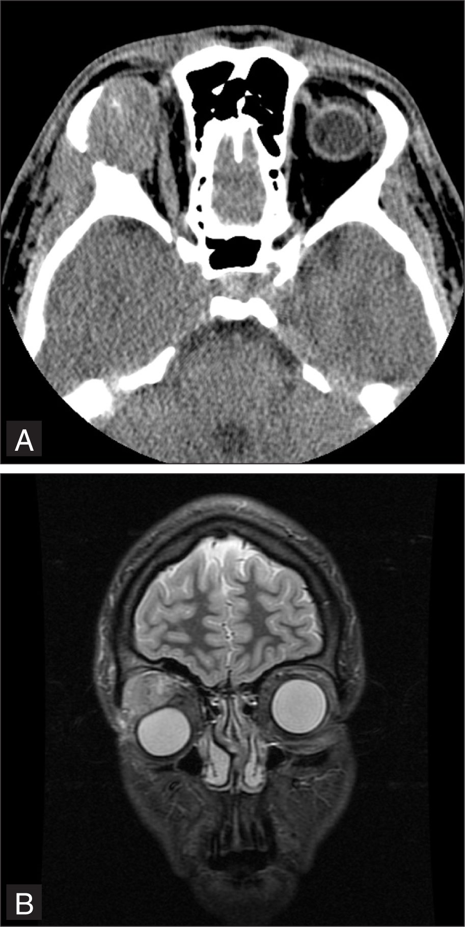 (A) Axial Computed Tomography and (B) Coronal T-2 Weighted Magnetic Resonance Imaging Demonstrate a Right Lacrimal Gland Mass with Contiguous Invasion Through the Lateral Orbital Wall Invading the Temporalis Muscle.