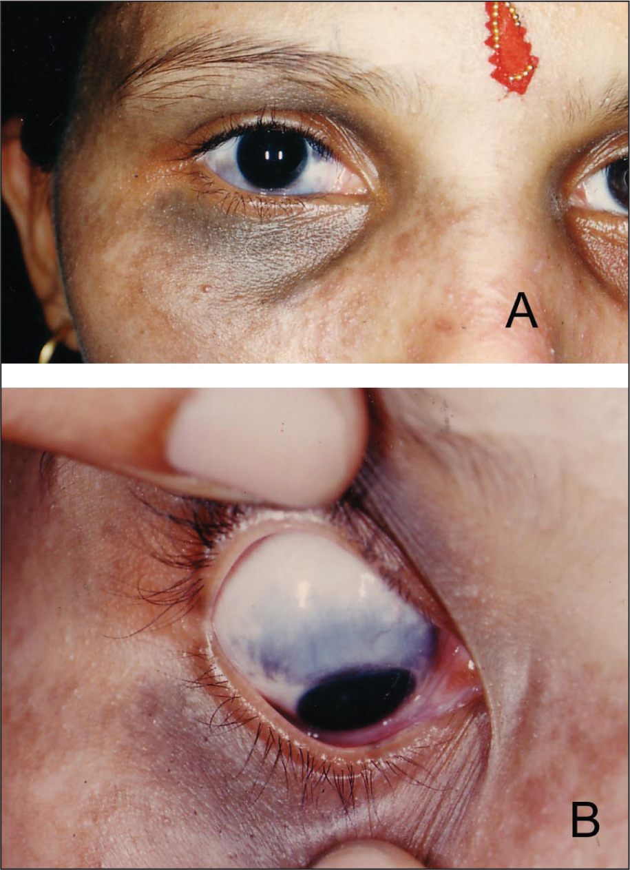 (A) Another Unusual Association Was the Presence of Abnormal Periorbital Pigmentation in the Patient's Mother. (B) on Retracting the Eyelid of the Mother on the Side of the Periorbital Pigmentation, Scleral Pigmentation Suggestive of Nevus of Ota Was Documented. She Was Examined Further for Glaucoma and Other Anterior Segment Abnormalities.