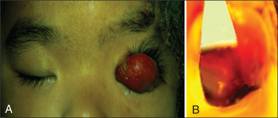 (A) A Remarkable, Red, Elliptical Soft Tumor (20 × 40 mm) Is Seen on the Left Upper Eyelid Ectropion. The Entire Left Upper Eyelid and Conjunctiva Were Keratotic and Inseparable. (B) the Left Eyeball Is Seen Embedded Under Thickened Conjunctiva After the Ectropic Eyelid and Red Tumor Were Drawn to One Side.