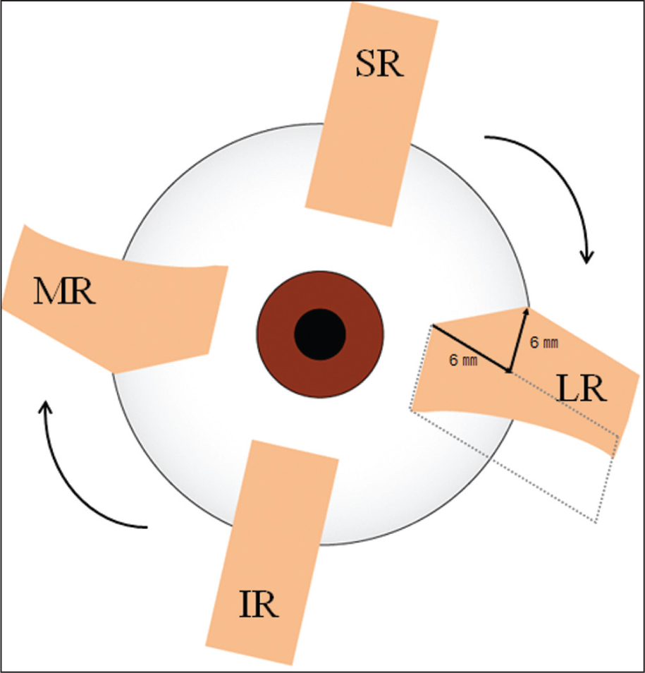 Downward Transposition of the Medial Rectus Muscle with Upward Transposition of the Lateral Rectus Muscle Causes Excycloduction of the Left Eye. Sr = Superior Rectus Muscle; LR = Lateral Rectus Muscle; IR = Inferior Rectus Muscle; MR = Medial Rectus Muscle.