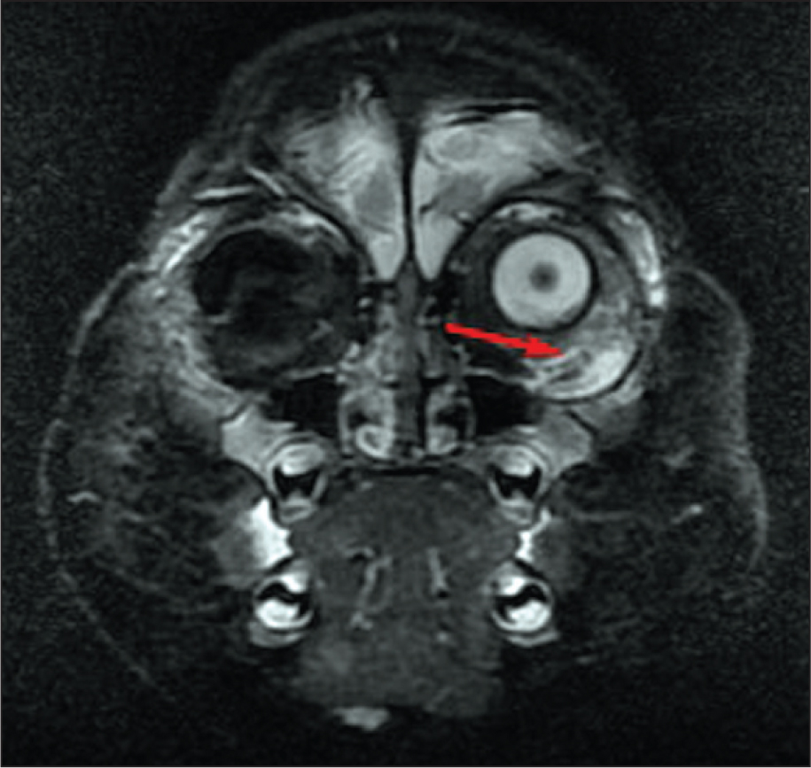 Magnetic Resonance Imaging Demonstrating Abnormal Enhancement (red Arrow) and Signal Characteristics of the Left Inferotemporal Orbit on T2 Post-Contrast Images Following Three Injections of Periocular Carboplatin.