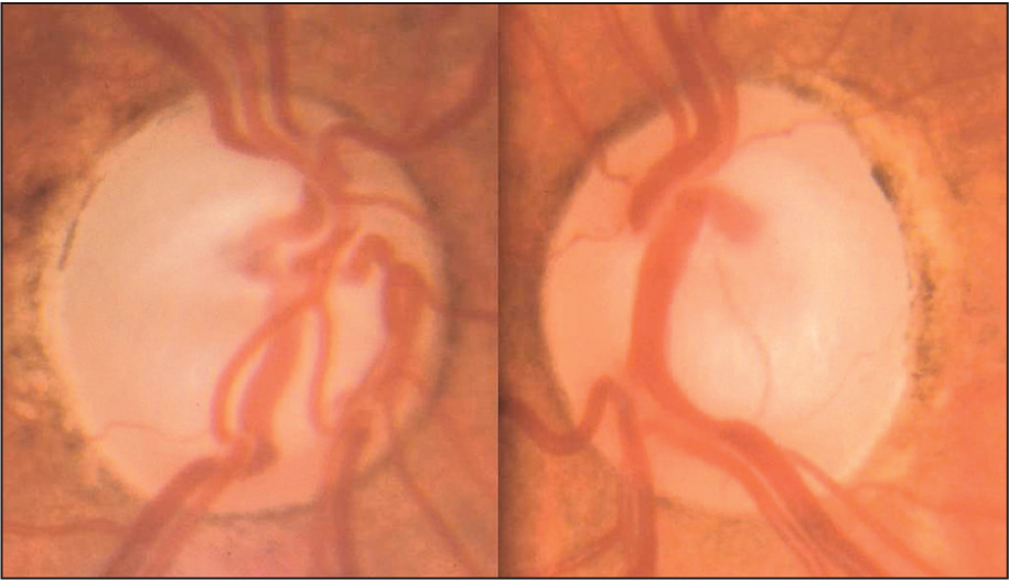 Both Optic Nerves Showed Significant Cupping and Pallor.