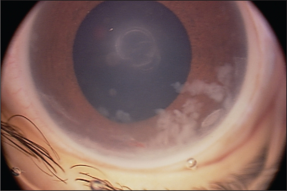 Exudates in the Anterior Chamber.