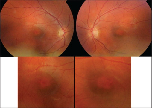 Fundus photographs: central depigmentation with surrounding densely pigmented region.