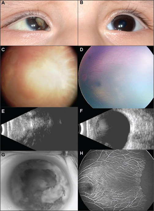 (A) A 2-month-old male infant with right leukocoria and 45-prism diopter right esotropia. (B) Externally unremarkable left eye. (C) The right eye showed total fibrotic retinal detachment and vitreous hemorrhage. (D) The left eye showed temporal dragging of retinal vessels. (E) B-scan ultrasonography of the right eye demonstrated dense intraocular disorganization, globe shrinkage, and flecks of intraocular calcium. (F) Ultrasonography of the left eye was unremarkable. Fluorescein angiography showed (G) diffuse staining of the disorganized globe in the right eye and (H) V-shaped non-perfusion temporally in the left eye.