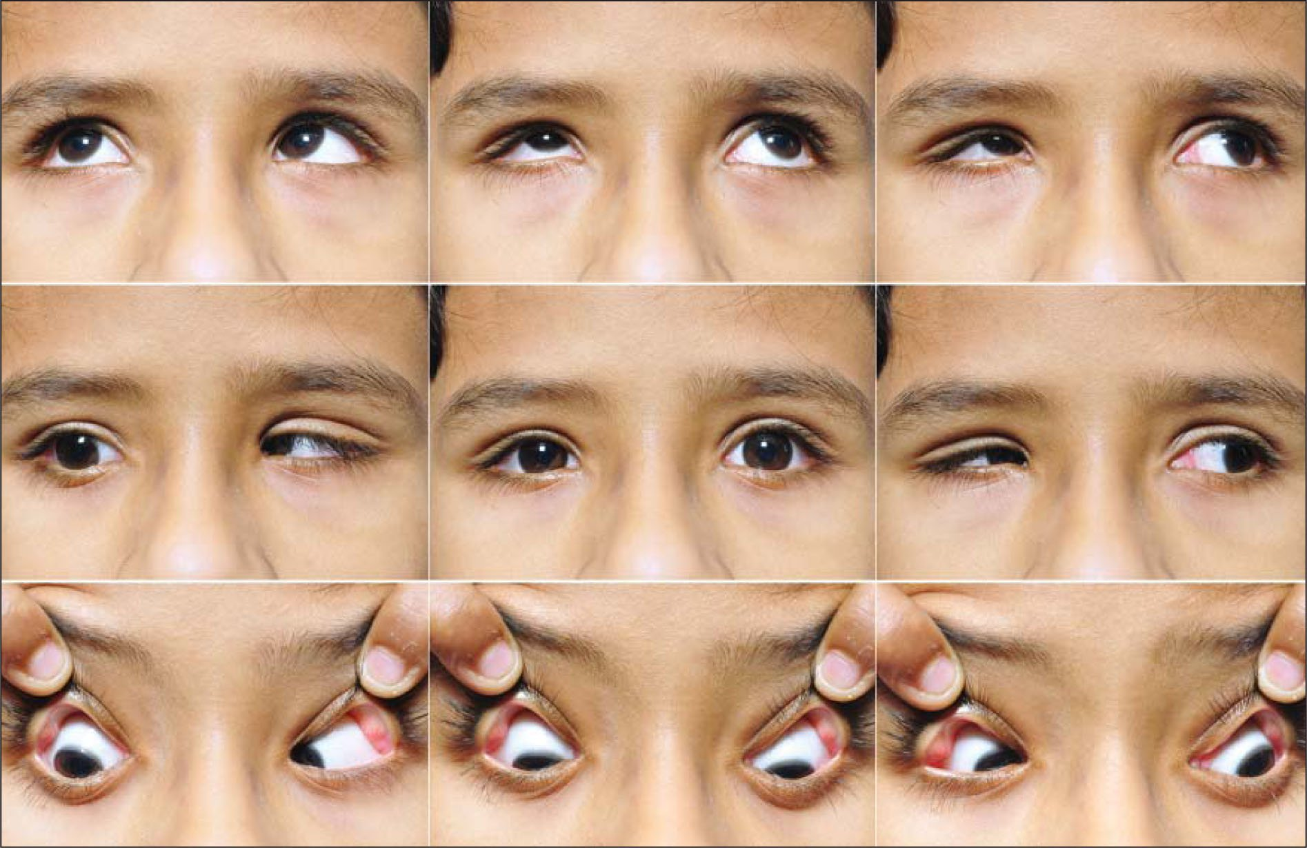 Nine-gaze photographs showing typical manifestations of Duane retraction syndrome (type 1) and a near normal-sized eyeball in the right eye.