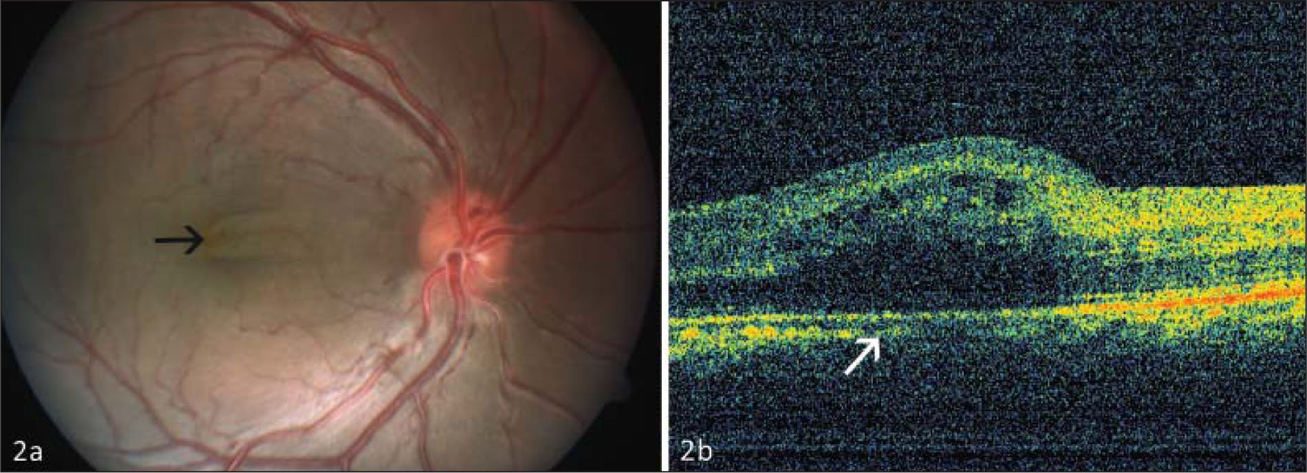 (A) Fundus photograph of the right eye showing papillomacular folds. (B) Optical coherence tomography of the right eye revealing schisis between the inner and outer retinal layers.
