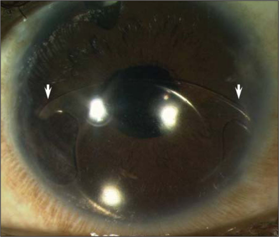The left eye of case 2 showing inferotemporal dislocation of the Artisan Iris-Claw anterior chamber intraocular lens implant (Ophtec BV, Groningen, The Netherlands). Both nasal and temporal iris claws were dislodged (arrows).