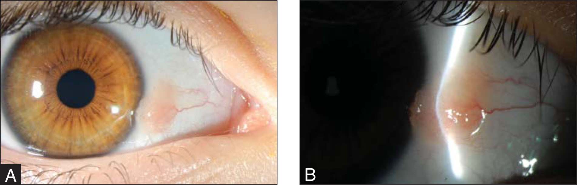 (A) Elevated, yellow-pink bulbar conjunctival lesion adjacent to the nasal limbus in a 9-year-old girl. (B) A dilated blood vessel extends from the medial canthus into its medial substance.