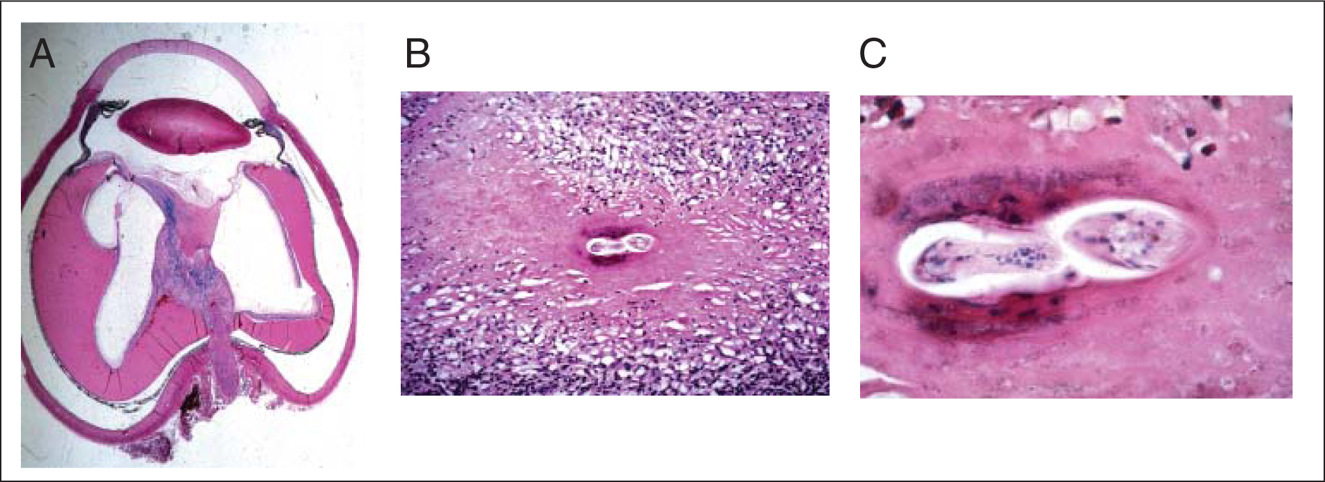 (A) Retrolental intravitreal fibroinflammatory mass with retinal detachment. (B) Intravitreal mass composed of fibroinflammatory cells with plasma cells, eosinophils, and fibrous tissue surrounding a nematode of Toxocara canis. (C) Partially well preserved nematode of T. canis (Photographs courtesy of Dario Savino-Zari, MD).