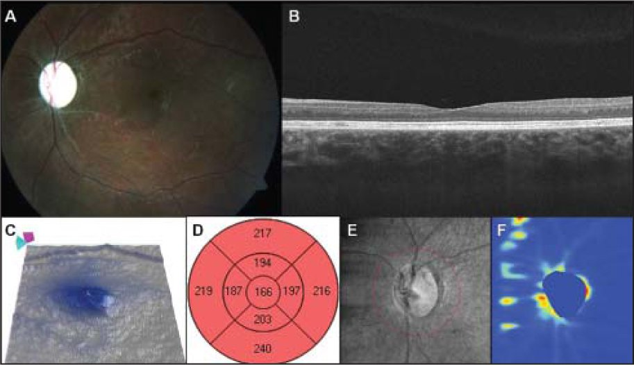 Late-stage diffuse unilateral subacute neuroretinitis. (A) Color fundus image of a 12-year-old boy with a 6-month history of visual loss. Visual acuity was 20/400. Optic nerve atrophy, retinal vessel narrowing, and some degree of pigmentary changes can be visualized. (B) High-resolution B-scan optical coherence tomography (OCT) through the fovea showing a thinning in the inner retinal layers. (C–D) OCT retinal thickness map (Cirrus; Carl Zeiss Meditec, Inc., Dublin, CA) showing a diffuse retinal thinning. (E–F) OCT fundus image and retinal nerve fiber layer map displaying a reduced retinal nerve fiber layer thickness.