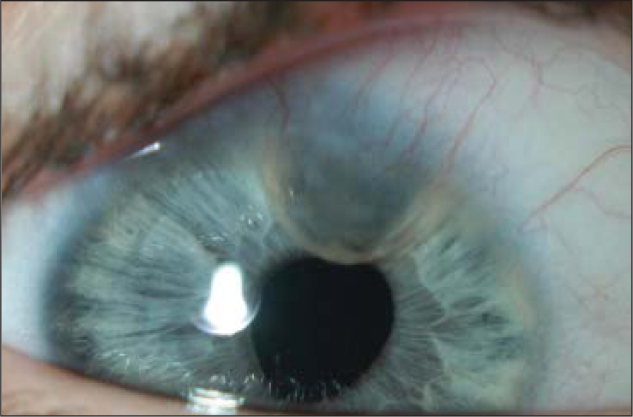 Color photograph showing an iris cyst in the right eye of case 1, 17 months after lensectomy and iris-suture fixated posterior chamber intraocular lens implantation.