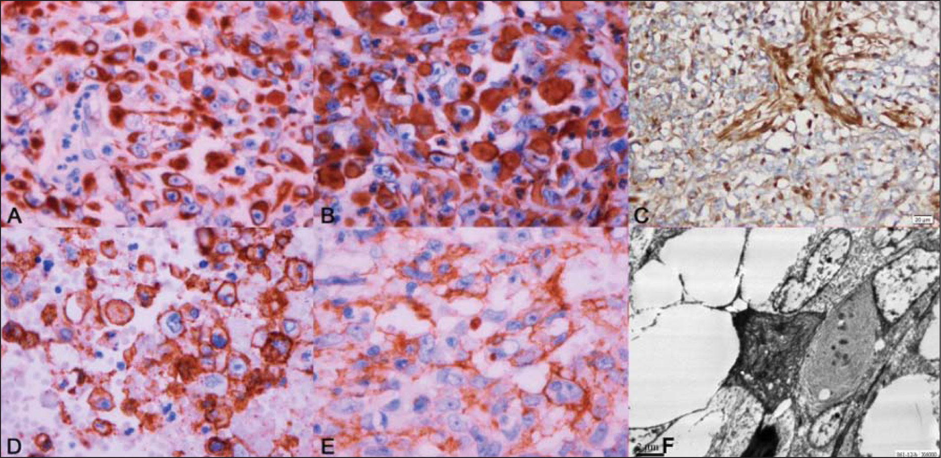 Immunohistochemical staining. (A) Strong immunoreactivity of tumor cells for cytokeratin (original magnification ×400) and (B) vimentin (original magnification ×400). (C) INI1 staining showing positive staining in the endothelial cells and loss of immunoreactivity in rhabdoid tumor cells (original magnification ×400). (D) CD34 immunoreactivity in tumor cells (original magnification ×400). (E) Focal immunoreactivity for epithelial membrane antigen (original magnification ×400). (F) Electron microscopic photograph showing inclusions composed of arrays and whorls of intermediate filaments amidst a few ill-defined mitochondria (original magnification ×6,000).