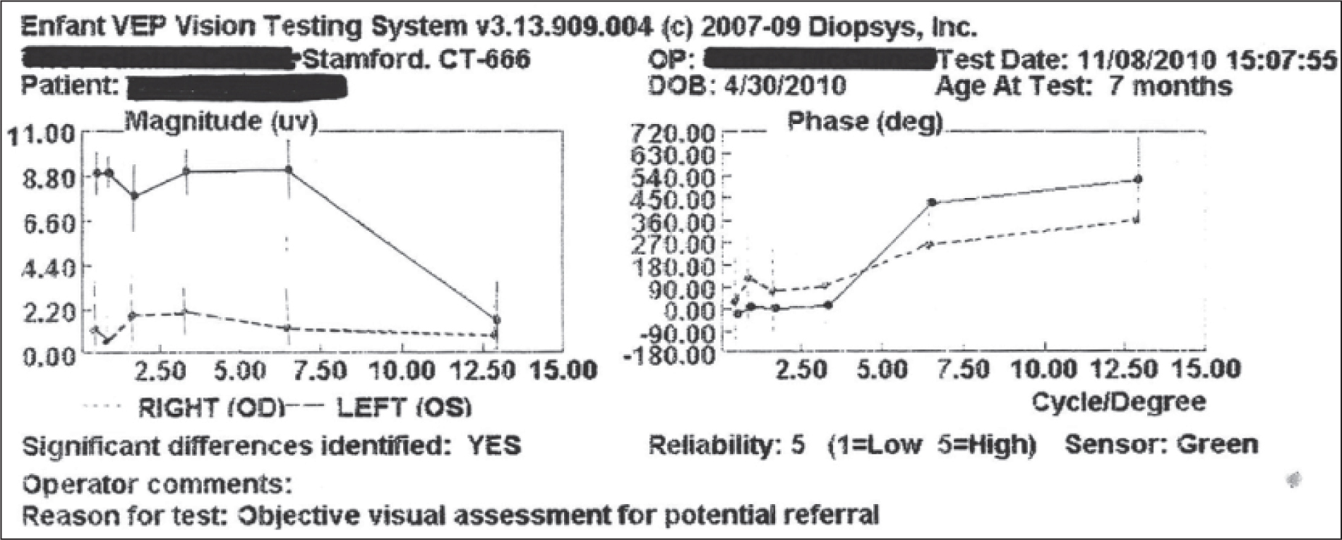 Printout from Diopsys Enfant Vision Screening System demonstrating the magnitude (left) and phase (right) of the steady state visual-evoked potential (VEP) for the right and left eyes of the first patient. Magnitude and phase parameters were calculated from the VEP responses at each of the six spatial frequencies (from 0.4 to 12.9 cycles per degree). The patient had a normal magnitude response at the various spatial frequencies for the left eye, but no detectable response in the right eye. The high reliability coefficient (5) and the sensor color (green) indicate high validity of the test result.