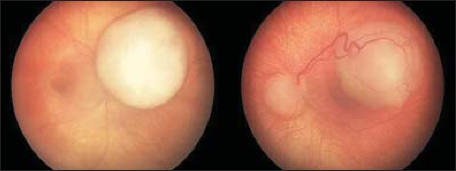 Color fundus photographs of the second patient demonstrating bilateral retinoblastoma. The photographs are presented in standard ophthalmic fashion with (left) the right eye and (right) the left eye.