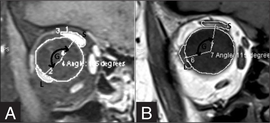The measurement of the angle of globe dislocation on a coronal magnetic resonance image in a patient with highly myopic strabismus (A) before and (B) after muscle union surgery. The angle of globe dislocation before surgery is 165°, the angle of globe dislocation after surgery is 115°. S = superior rectus, L = lateral rectus, G = the areas centroid of the globe.