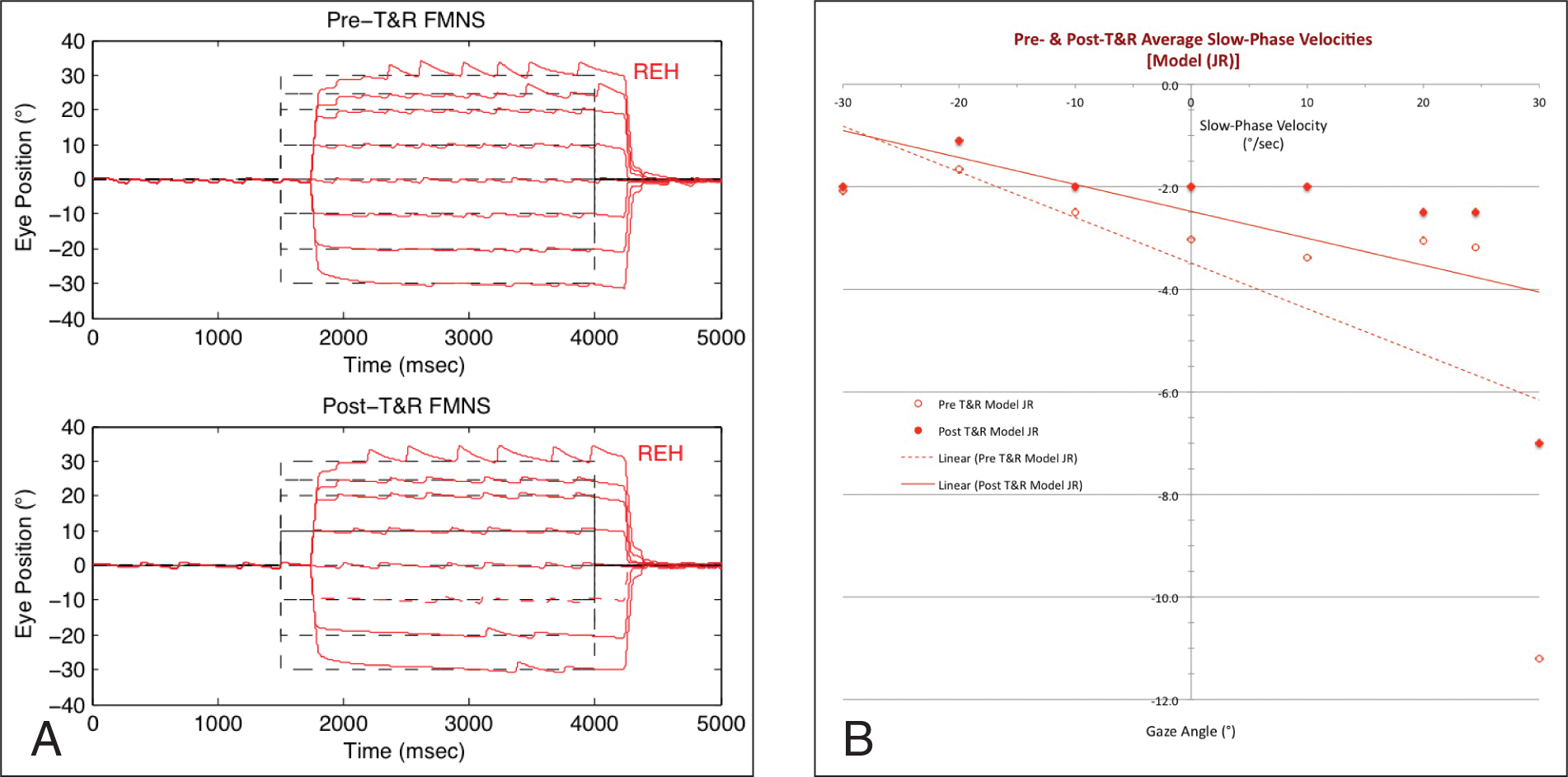 Simulation of preoperative and postoperative tenotomy and reattachment (T & R) effects on right-beating (ie, right-eye fixation) fusion maldevelopment nystagmus syndrome (FMNS). (A) Pre-tenotomy and reattachment FMN showing the Alexander's law increases in abduction and the transition from jerk nystagmus to saccadic pulses at 24.5°. Postoperative tenotomy and reattachment: the model predicted a lowering of nystagmus amplitudes and frequencies and broadening of low-amplitude range of gaze angles. (B) Postoperative tenotomy and reattachment improvement of average slow-phase velocities. The high preoperative and postoperative tenotomy and reattachment non-linear velocities for the saccadic pulses in far abduction are not included. Dashed lines are target positions.
