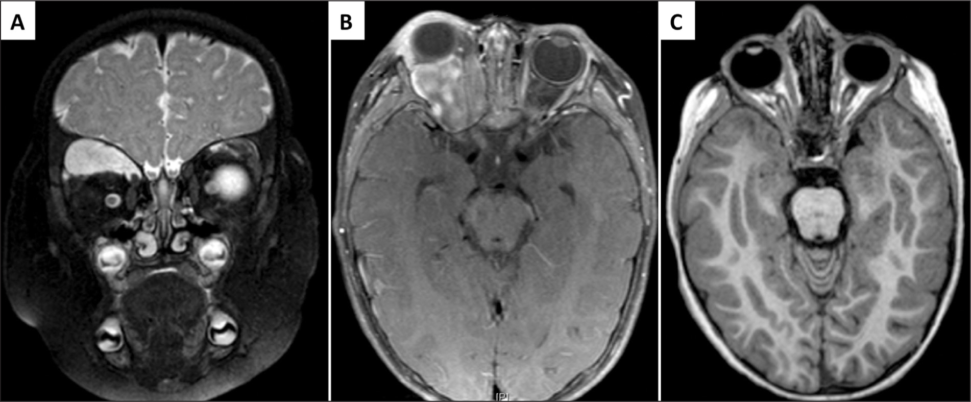 (A) T2-weighted magnetic resonance imaging (MRI) showed a T2-bright mass. There was osseous remodeling of the right orbit, but no bone invasion. (B) Repeat MRI 5 months later (fat-saturated contrast-enhanced T1-weighted) demonstrated a 4.3 × 2.9 × 2.8 cm mass that occupied the intraconal and extraconal space of the right orbit. (C) T1-weighted MRI 20 months after the patient began chemotherapy with no apparent residual tumor.