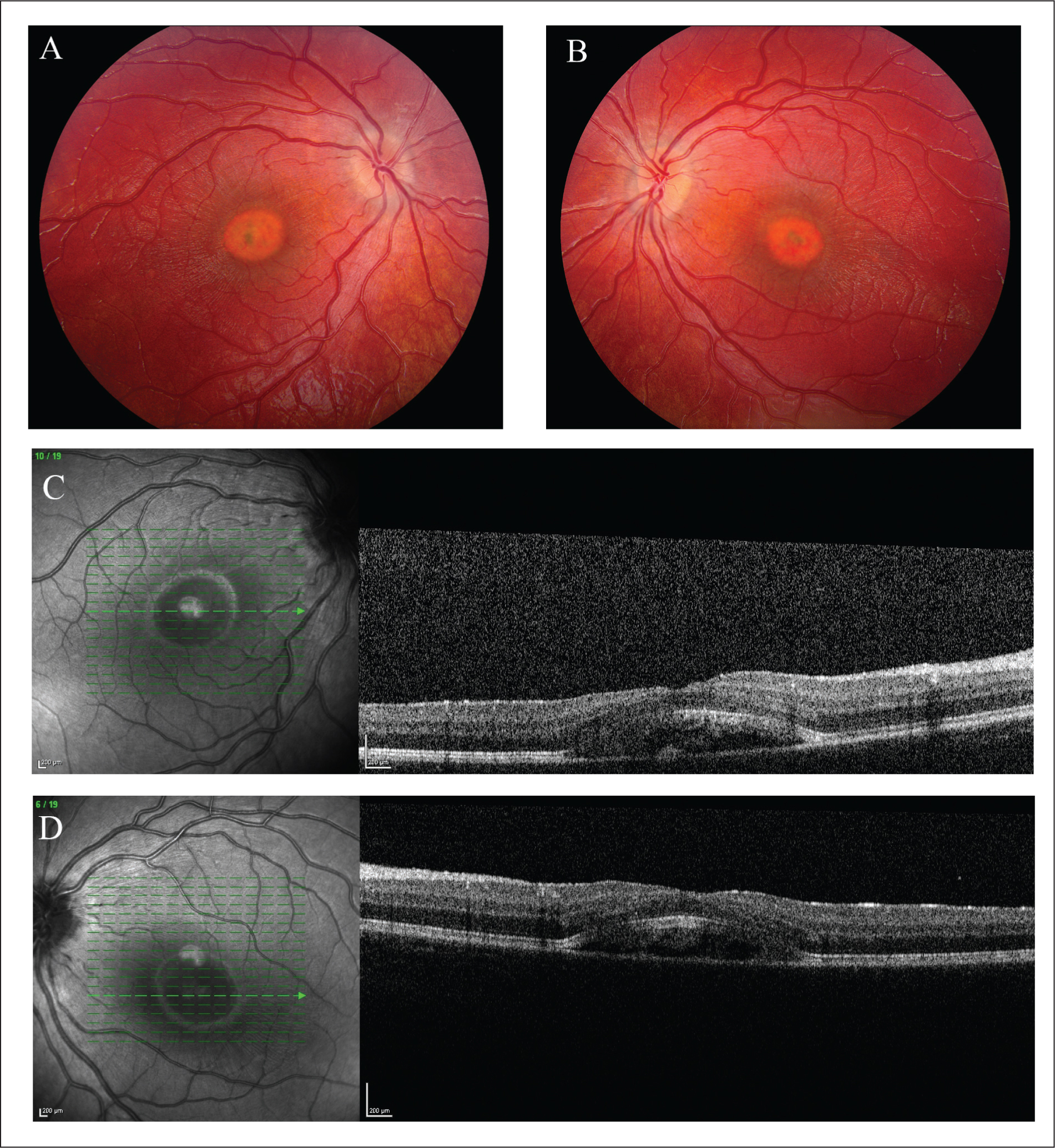 (A) Right and (B) left fundus photographs of the 31-month-old girl (case 2) showing bilateral vitelliform lesions. Optical coherence tomography images of the (C) right and (D) left eyes.