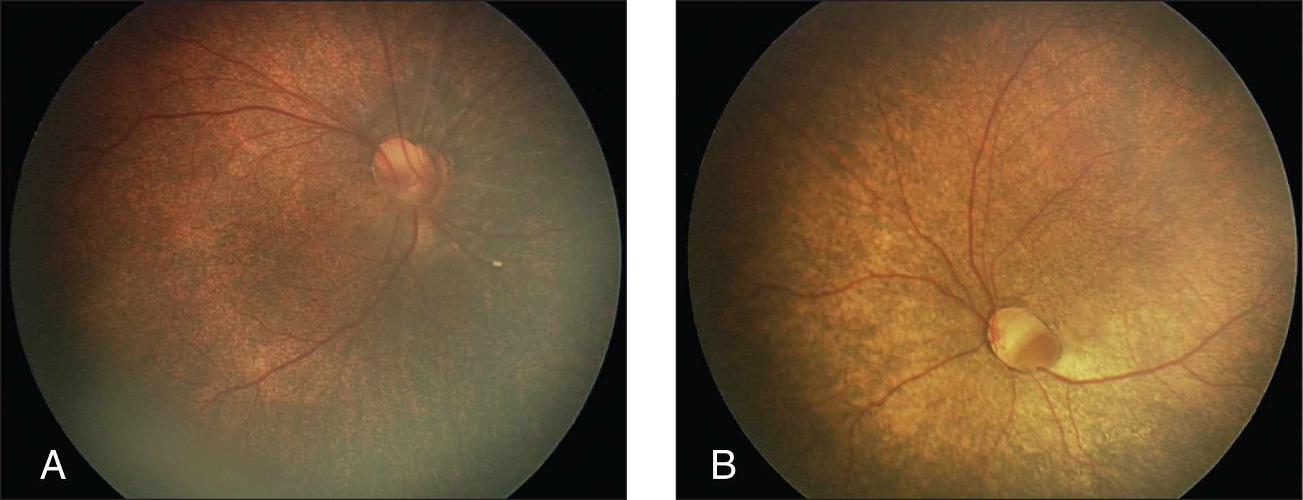 Retcam (Clarity Medical Systems, Inc., Pleasonton, CA) posterior segment photographs of the (A) right and (B) left eye with deep optic nerve colobomas, diffuse retinal dysplasia, and a lack of foveal contours. There is a small serous detachment around the right optic nerve.