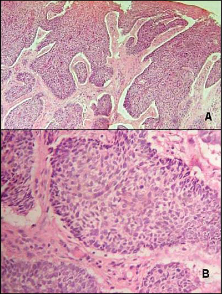 Basal cell carcinoma, nodular type. The islands of basaloid tumor cells show peripheral palisading and mitotic and apoptotic figures. A cleft is also present at the interface with the dermis. (A) Hematoxylin–eosin, original magnification ×100. (B) Hematoxylin–eosin, original magnification ×200.