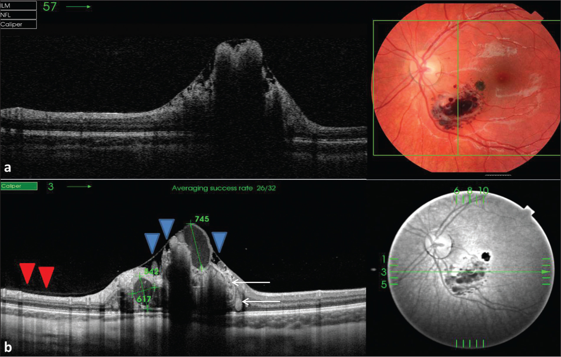 Fourier-domain optical coherence tomography showed an intraretinal lesion with cystic-like internal appearance. (A) Significant optical shadowing was present, preventing the visualization of any subretinal component to the lesion. (B) The 12-mm long 5-raster line cross pattern (5 lines vertical and 5 lines horizontal) default setting was used in a vitreous focal mode and centered on the fovea. The spacing between the top and the bottom line of the 5-line cross pattern was set at 1.5 mm. The scans showed thickened retina with optically clear intraretinal saccular structures and saccular structures with content of medium reflectivity observed as hemorrhage on fundus biomicroscopy, color photography, and fluorescein angiography (white arrows) and were compatible with the saccular aneurysms. Overlying preretinal tissue can be observed forming bridges between the saccules (blue arrows). Swept-source optical coherence tomography scans also showed the hyaloidal membrane attached to the posterior pole (red arrows), and the bursa premacularis (green arrows).