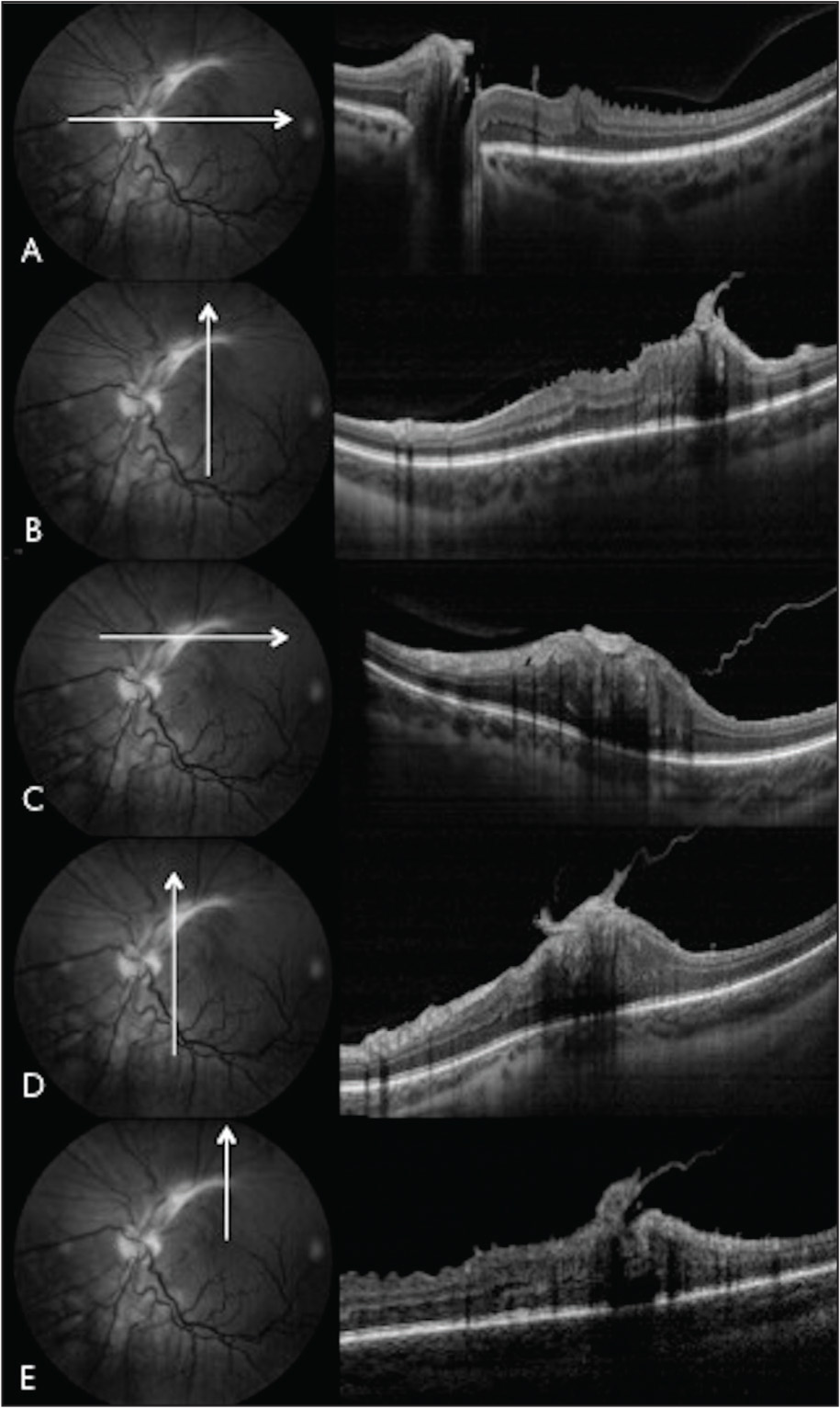 Spectral-domain enhanced depth imaging optical coherence tomography of combined hamartoma. (A) Horizontal cut through inferior margin of lesion near the optic disc, showing classic mini-peak sawtooth patterns, with vitreoretinal adhesion. (B) Vertical cut through temporal portion of lesion, showing vitreoretinal traction with mini-peak sawtooth pattern, and one focus of dense preretinal fibrosis with retinal folding. (C) Horizontal cut through midportion of lesion, demonstrating dense flat epiretinal fibrosis with maxi-peak retinal folding involving all retinal layers. (D) Vertical cut through midportion of lesion, demonstrating dense flat epiretinal fibrosis with maxi-peak retinal folding and deep shadowing. (E) Vertical cut at temporal edge of lesion, showing dense focus of epiretinal fibrosis with both mini-peak (inferior edge) and maxi-peak (midportion) changes with outer retinal edema.