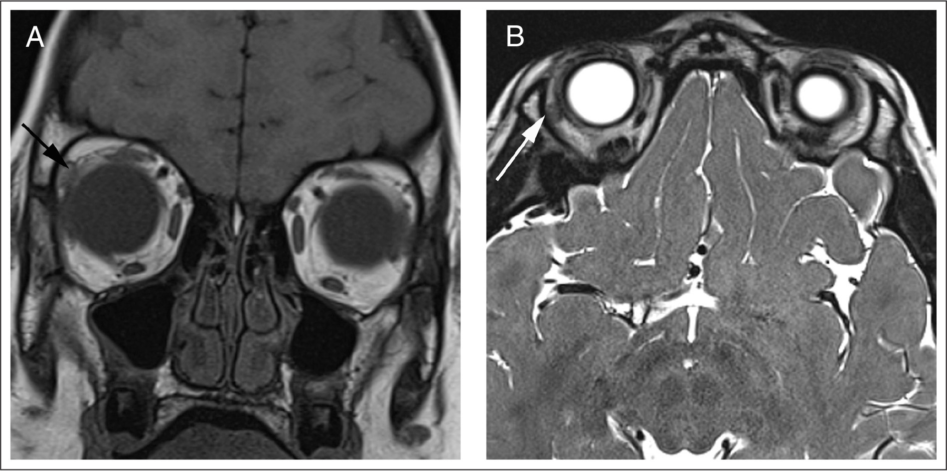 (A) A high-resolution coronal T1-weighted 3T magnetic resonance image (MRI) of the orbits reveals complete absence of the left lacrimal gland and a severe hypoplasia of the right lacrimal gland (black arrow). (B) Axial three-dimensional sampling perfection with application optimized contrasts using different flip angle evolutions MRI of the superior orbits corroborates left lacrimal gland aplasia and severe hypoplasia of the right lacrimal gland (white arrow).