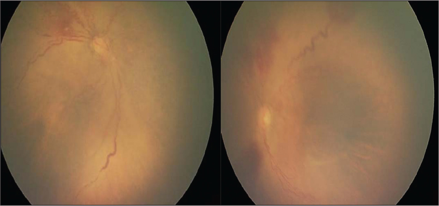 Case 1 initial eye examination at post-menstrual age 33 and 5/7 weeks in the right eye (left) and left eye (right).