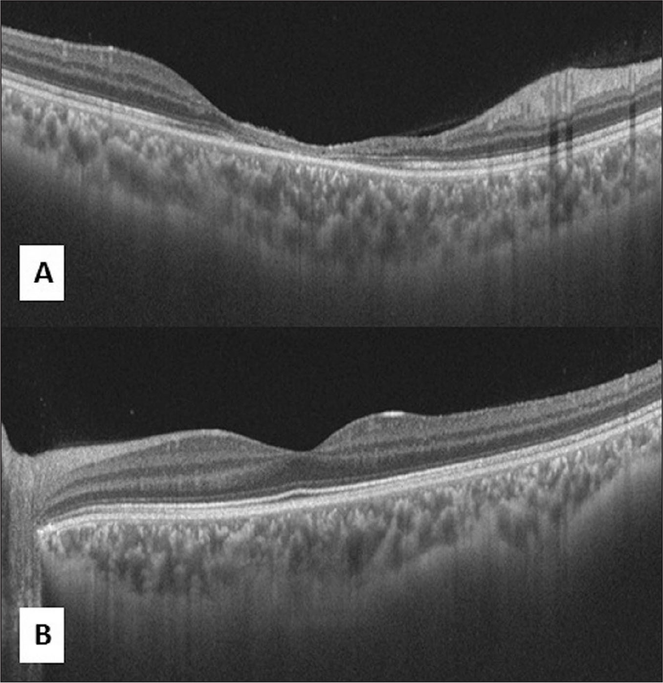 (A) Swept source optical coherence tomography (SS-OCT) image of the right eye showing foveal atrophy, disrupted ellipsoid zone, and outer retinal layers. The choroidal vasculature is preserved. (B) SS-OCT image of the left eye showing normal retinal and choroidal vasculature.