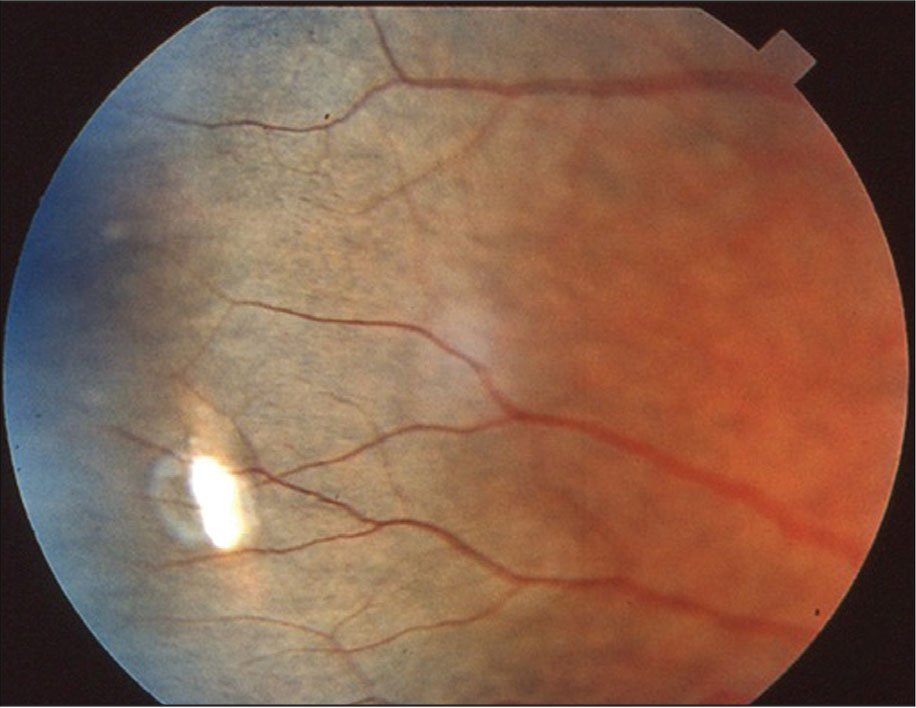Fundus photograph showing scleral perforation a few days after muscle surgery on the lateral rectus muscle.