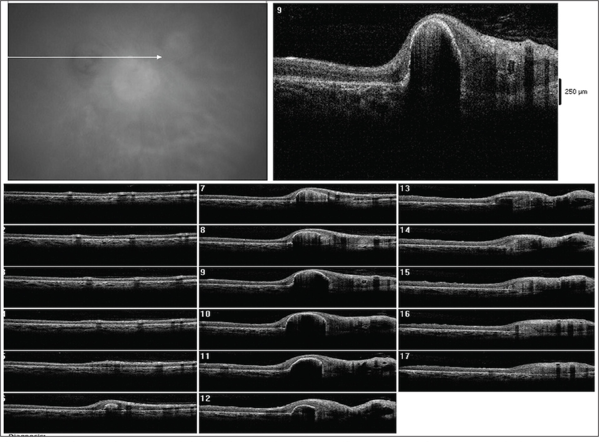 The right eye with pigment epithelial detachment with moderate and heterogeneous reflectivity on optical coherence tomography over the scar next to the papillary area 1 month following ranibizumab injection.