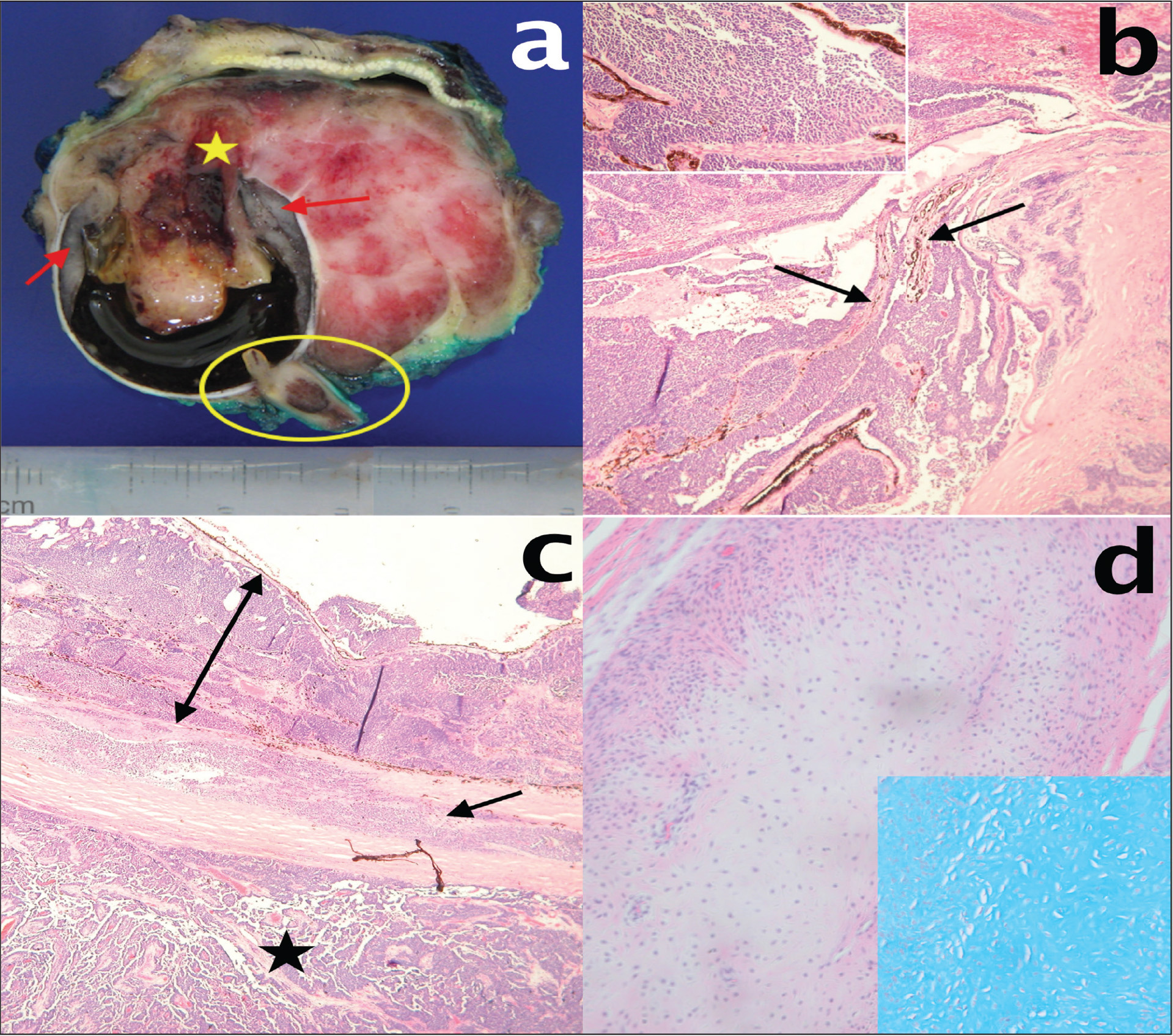 Histopathologic features of the medulloepithelioma. (A) Gross photograph showing grayish ciliary body tumor (arrow) extending into the anterior and posterior chambers. The tumor perforated through the anterior sclera (star) and extended into the orbit. Invasion of the optic nerve was found (circle). (B) Ciliary processes (arrows) surrounded by cords and sheets of hyperchromatic tumor cells. Inset shows formation of Flexner–Wintersteiner and Homer Wright rosettes (hematoxylin–eosin, original magnification ×100). (C) The retina and choroid filled with tumor cells (double-headed arrow). The tumor invaded through the sclera (arrow) and extended to the outside of the globe (star) (hematoxylin–eosin, original magnification ×40). (D) Section showing cartilaginous differentiation (hematoxylin–eosin, original magnification ×100) and inset demonstrating that the section is stained positively with alcian blue (hematoxylin–eosin, original magnification ×200).