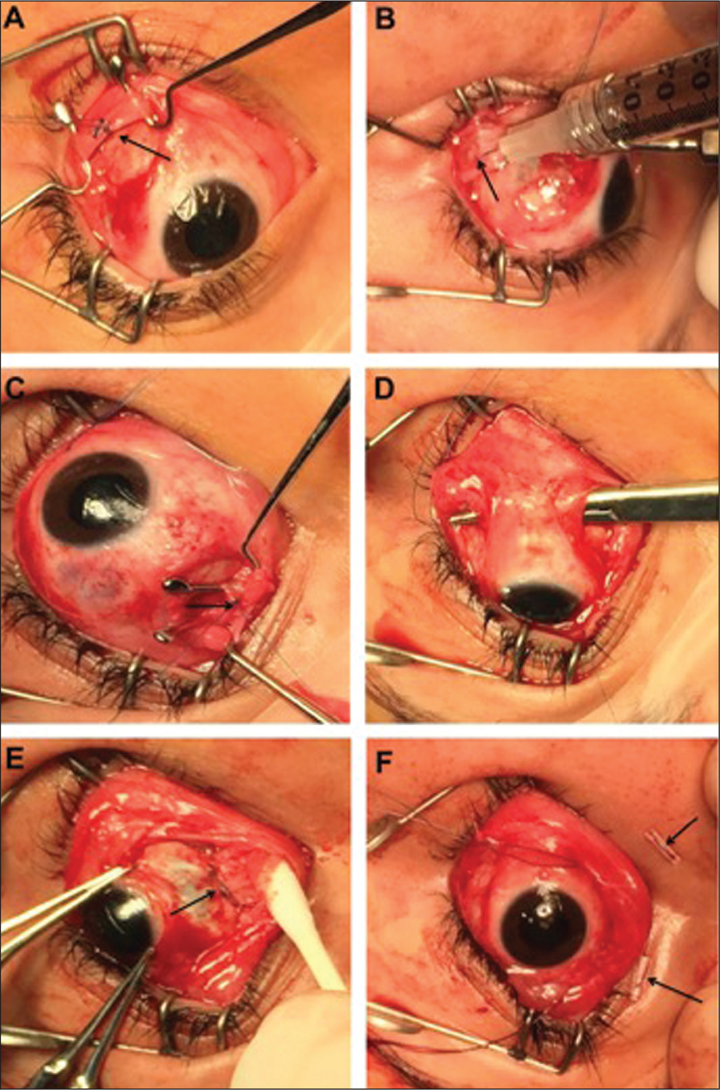 The operational stages of the surgical procedure. (A) The suture (arrow) isolating the inferior oblique muscle lateral to the inferior rectus muscle. (B) Injection of botulinum toxin (arrow) into the lateral rectus muscle. (C) Isolation of, and suture through, the superior oblique tendon medial to the superior rectus muscle (arrow). (D) A hemostat (arrow) grabbing the inferior oblique muscle by the previously placed suture and bringing it to the inferonasal quadrant of the eye under the inferior rectus muscle. (E) The joined inferior oblique muscle and superior oblique tendon (arrow) at the insertion of the medial rectus muscle. (F) The bolsters (arrow) securing two 5-0 polyglactin 910 sutures through the skin, periorbita, and episclera of the inferior and superior medial orbit and eye.