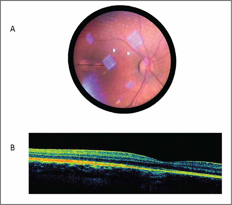 (A) Indirect ophthalmoscopy fundus image of the right eye shows a flat, hypopigmented, fusiform lesion with well-defined margins and a tip pointing toward the fovea located at the temporal to macula. The black line represents the optical coherence tomography scan site. (B) Spectral-domain optical coherence tomography of the lesion shows preserved foveal contour and slight increase in the retinal pigment epithelium reflectivity in the lesion region.