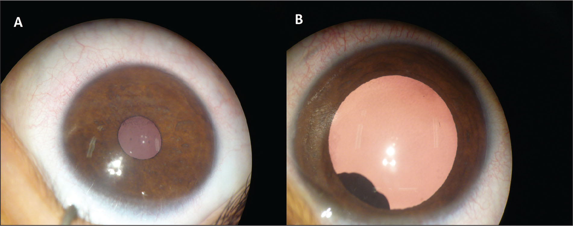 The anterior segment. (A) Before dilatation, the anterior segment seems be normal and does not show any abnormal structure. (B) After dilation, the pigmented cyst becomes visible by overflowing the pupillary contour, but not obstructing the visual axis. Note the polylobed character.
